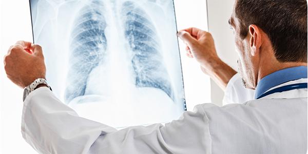 Akciğeri Temizleyen Bitkiler